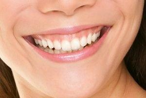 Laser Gum Surgery Sunshine Coast | Northshore Dental