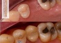 Non Invasive Implants!