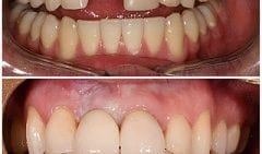 Implant Placement- Upper Front Tooth