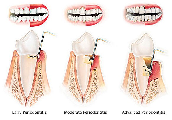 three stages of periodontitis